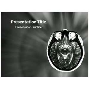 Magnetic Resonance Imaging (Mri) Powerpoint Template  Breast Mri